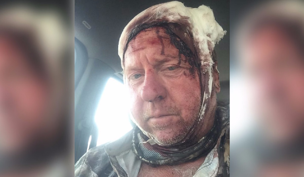Grizzly bites, claws hunter; man's head got worst of it